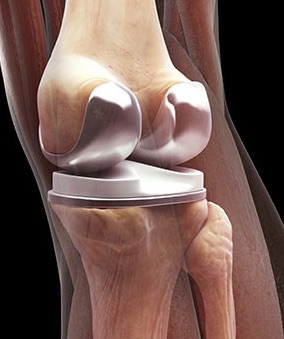 risks rehabilitation and recovery total knee replacement